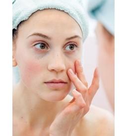 Carboxiterapia Facial (10 sessões)